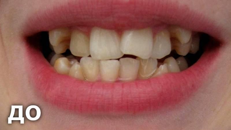 как выровнять передние зубы
