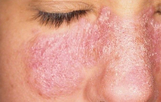 себорейный псориаз на лице