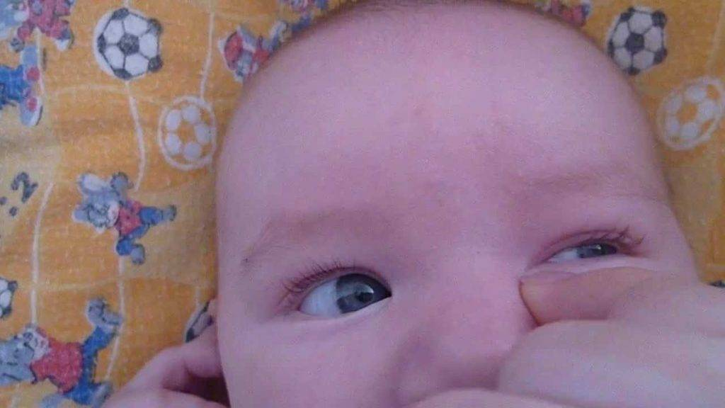 Почему закисают глаза у ребенка? причины и лечение