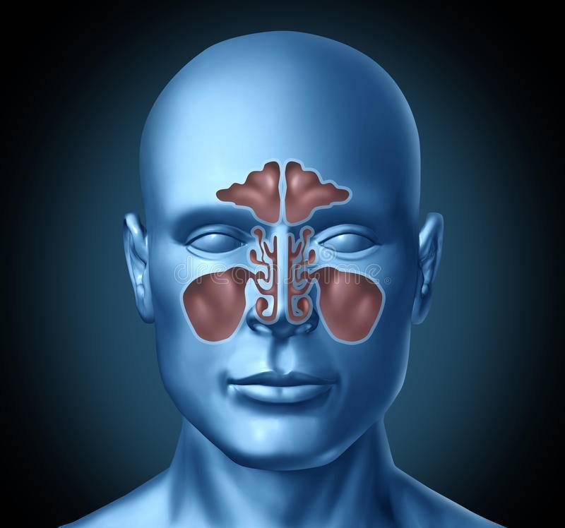 Воспаление носовых пазух: симптомы и лечение в домашних условиях