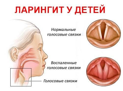Ларингит у детей - причины возникновения, симптомы, медикаментозные и народные средства лечения