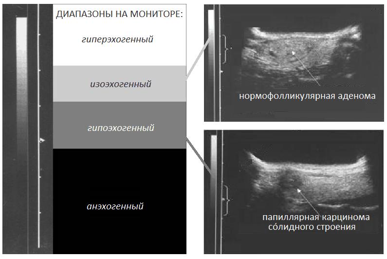 Гипоэхогенный узел щитовидной железы | pro shchitovidku