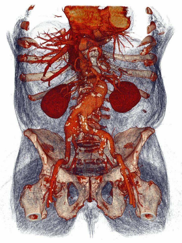 атеросклероз брюшной аорты что это такое