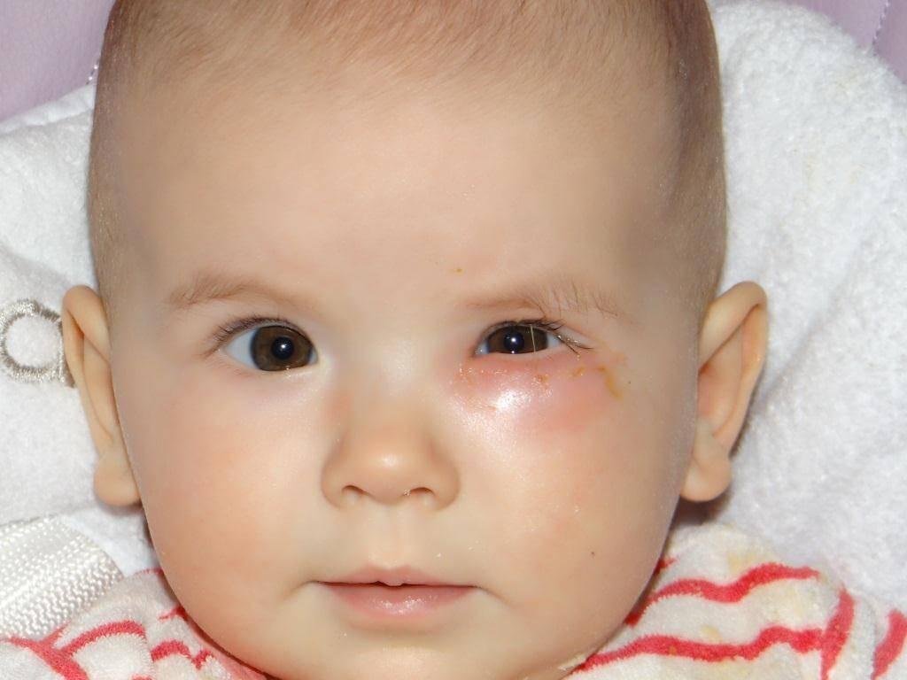 Причины слезоточивости из глаз у грудничка и методы лечения.