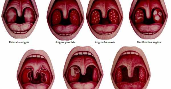 Как бороться с лакунарной ангиной у ребёнка: особенности заболевания, лечение и профилактика
