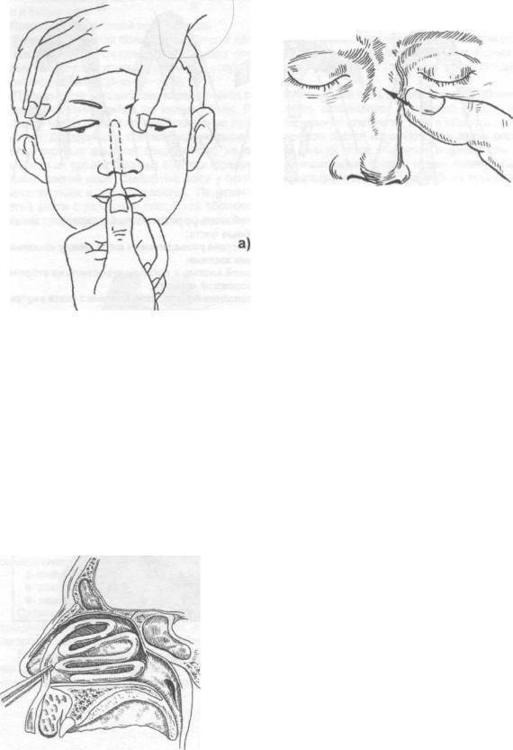 Репозиция перелома костей носа