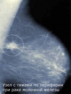 Предстоит операция на груди