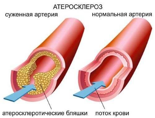 Способы профилактики атеросклероза сосудов