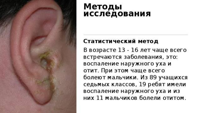 Болезни уха у взрослых: симптомы, лечение и профилактика