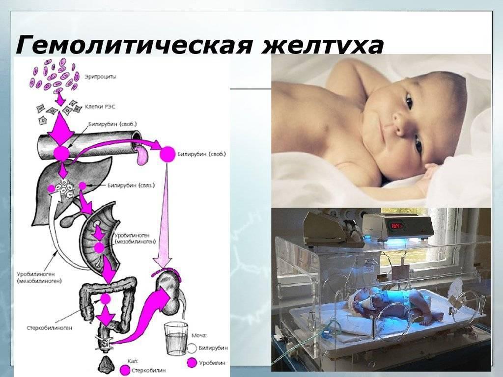 Гемолитическая желтуха новорожденных: причины, симптомы, лечение и последствия