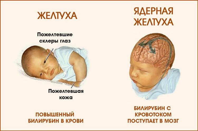 как лечить желтуху у новорожденных в домашних условиях