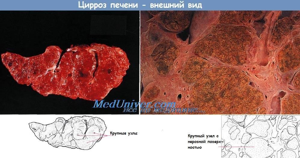 Последствия кардиального цирроза печени
