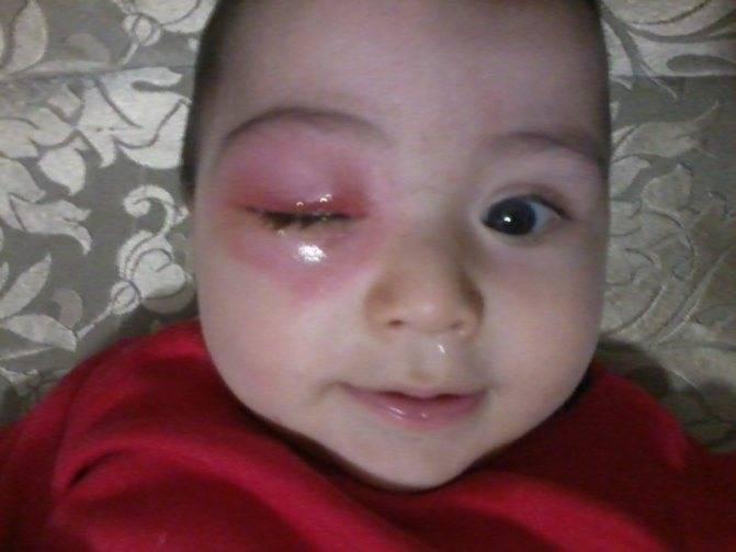 ребенка укусил комар опухло веко