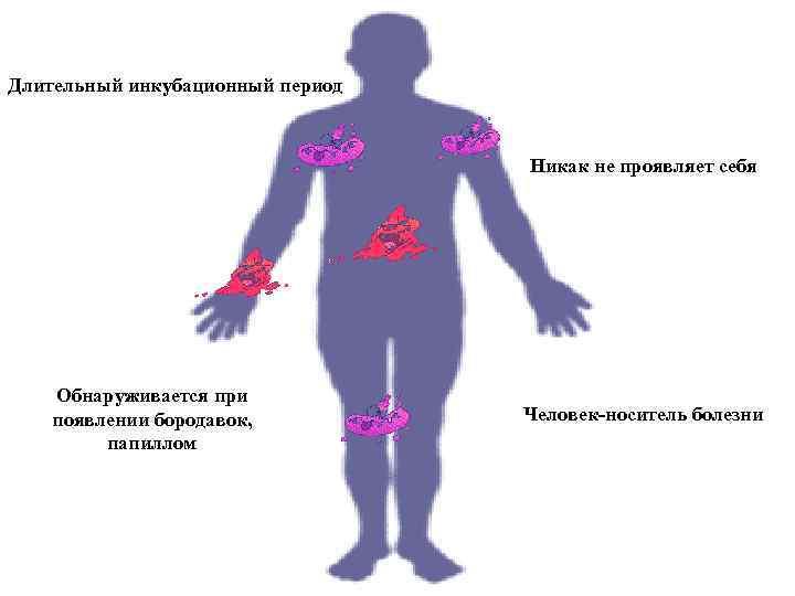 Чесотка: лечение, симптомы и инкубационный период