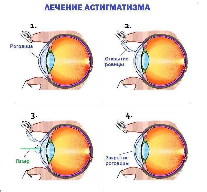 Реабилитация после лазерной коррекции астигматизма