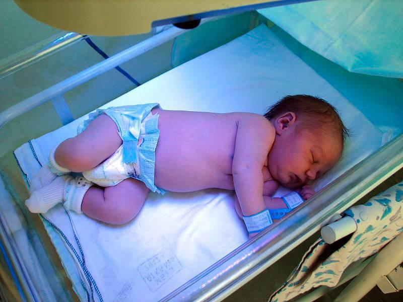 Неонатальная желтуха новорожденных: что это, лечение