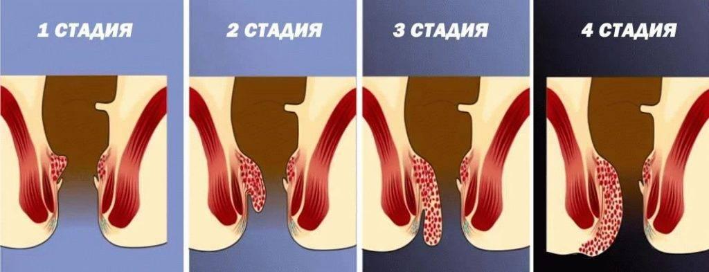 геморрой второй стадии лечение