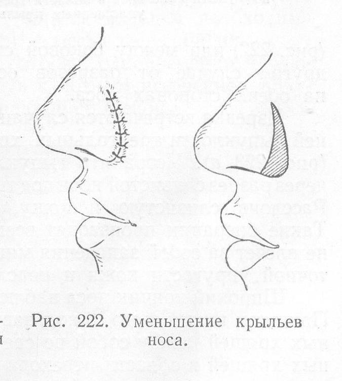Базалиома носа: фото, особенности, внешний вид, похожие заболевания кожи.