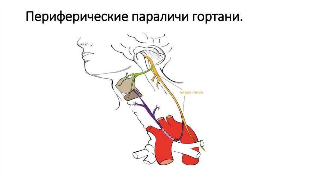 парезы и параличи гортани