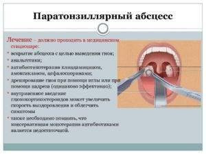 Гнойный тонзиллит (паратонзиллярный абсцесс): причины, симптомы, лечение