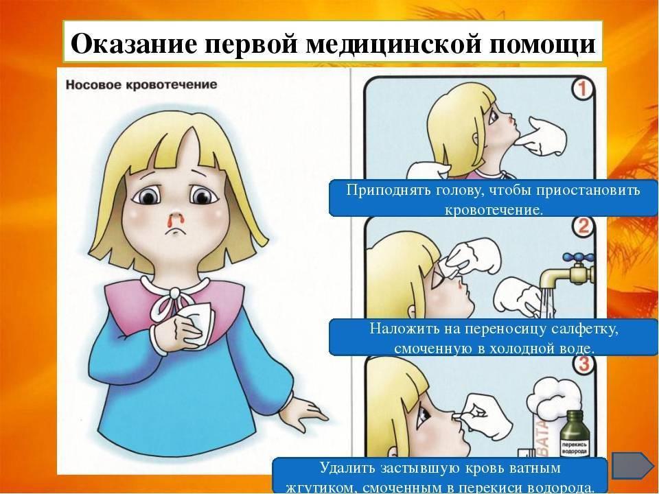 10 способов остановить кровотечение из носа. причины и правила оказания первой помощи