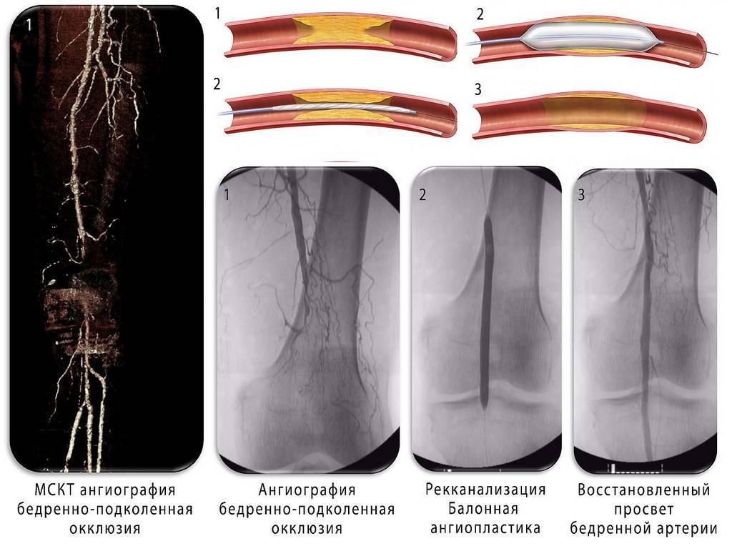 Как проводится ангиопластика артерий ног