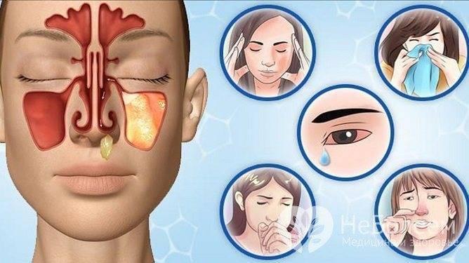 Передается ли гайморит. заразен ли гайморит для окружающих? заразно ли хроническое течение болезни
