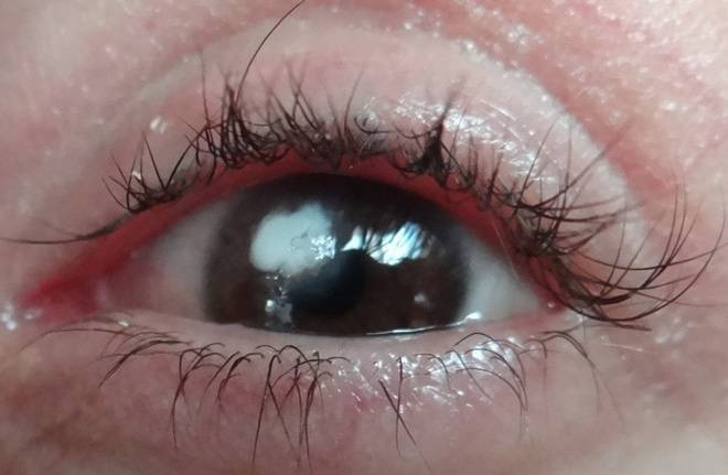 Почему появляется темное пятно в глазу когда смотришь?