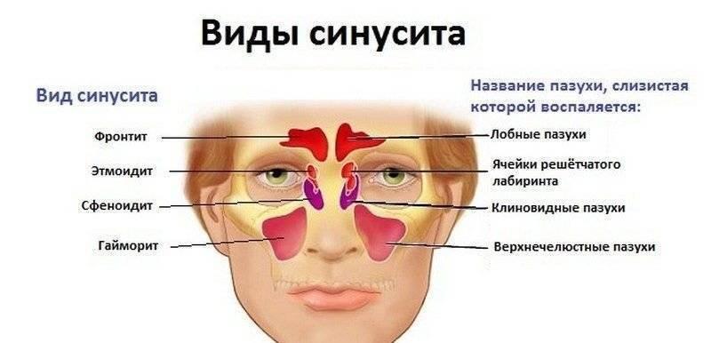 фронтальный синусит