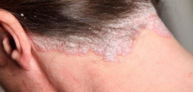 Псориаз и дерматит отличия
