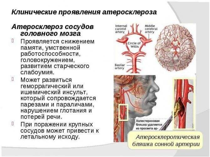 Атеросклероз: симптомы, причины, диагностика, лечение и профилактика