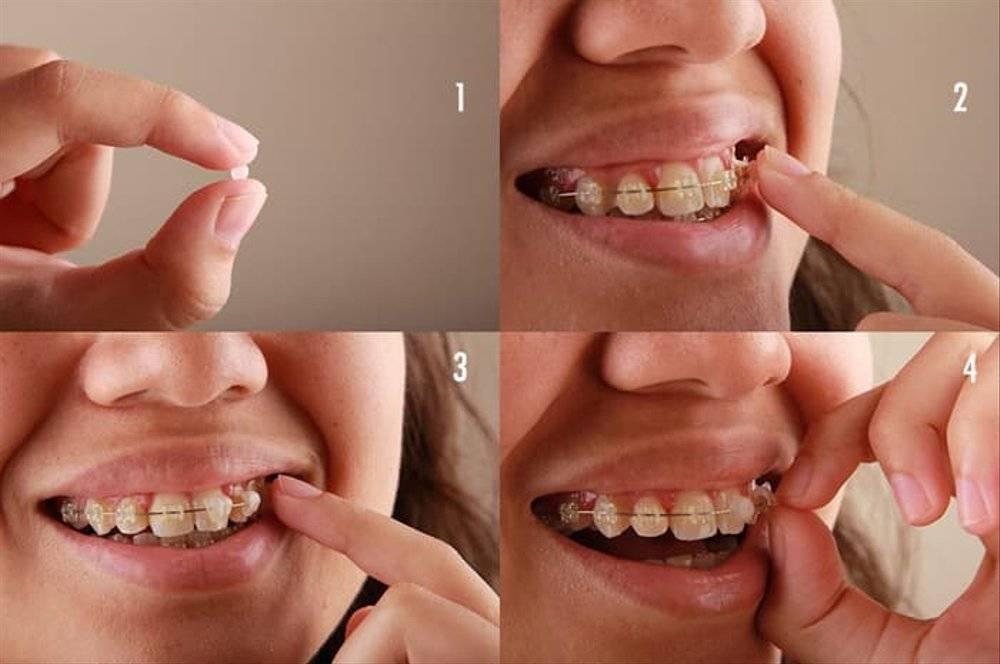 Что делать если брекеты натирают губу. брекеты натирают щеки, что делать? методика нанесения воска включает в себя несколько этапов