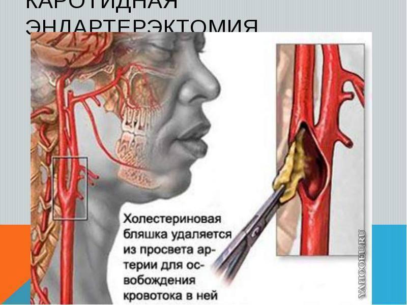 атеросклероз брахиоцефальных артерий симптомы и лечение