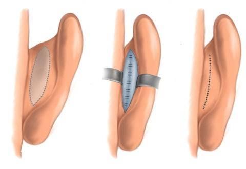 Лопоухость: причины, можно ли исправить без операции, коррекция