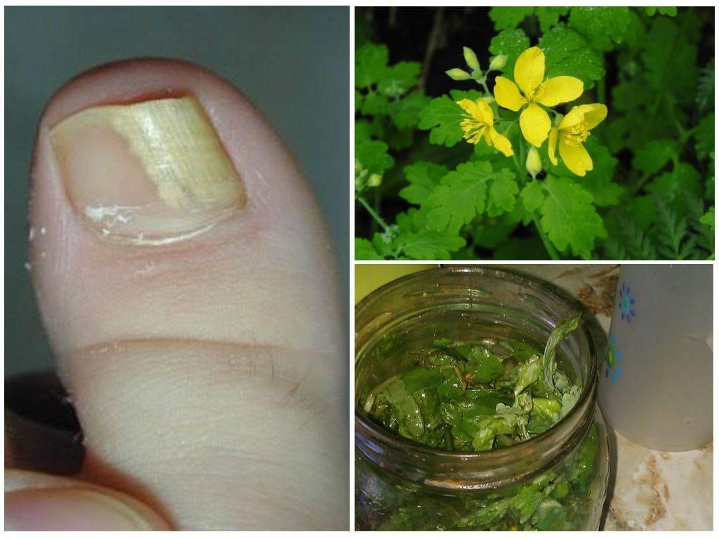 Лечение псориаза при помощи чистотела (рецепты)