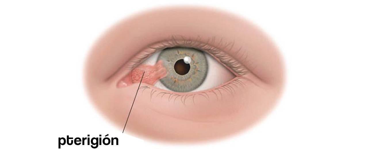 операция по удалению птеригиума