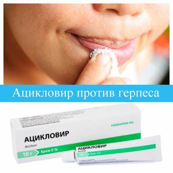 препараты от герпеса на губах в таблетках