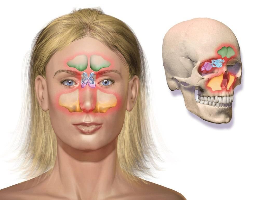 Гайморит — симптомы и лечение у взрослых, спросиврача