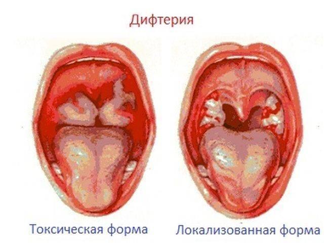 Дифтерия у детей — симптомы и лечение