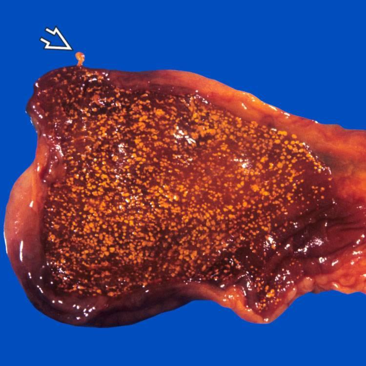 Холестероз стенок желчного пузыря: методы лечения