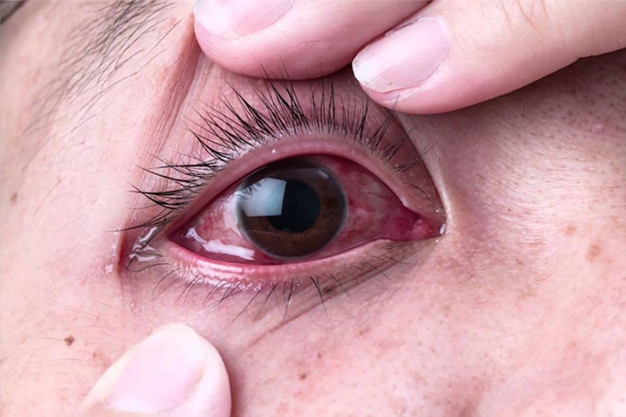 Почему болят глаза когда ими двигаешь при простуде