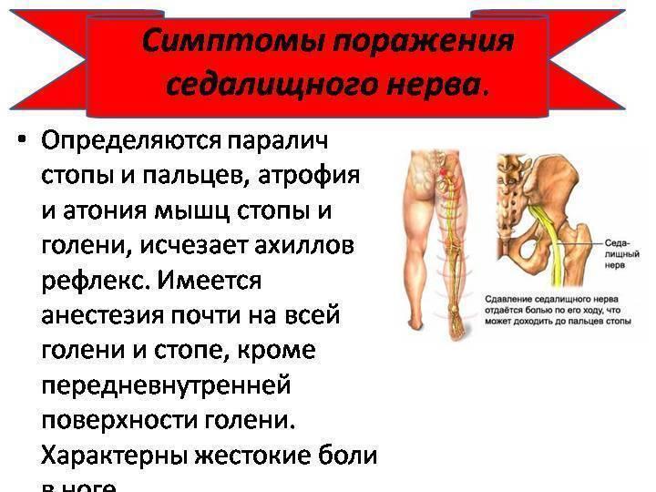 неврит седалищного нерва симптомы лечение