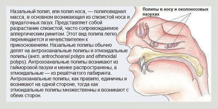 чем лечить заложенный нос у ребенка