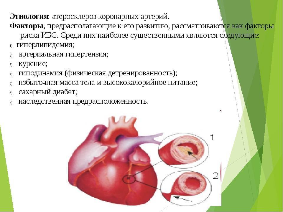 Способы лечения атеросклероза коронарных артерий