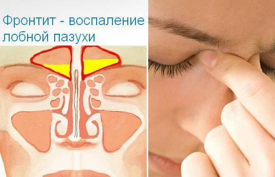 Фронтит – лечение у взрослых воспаления лобных пазух