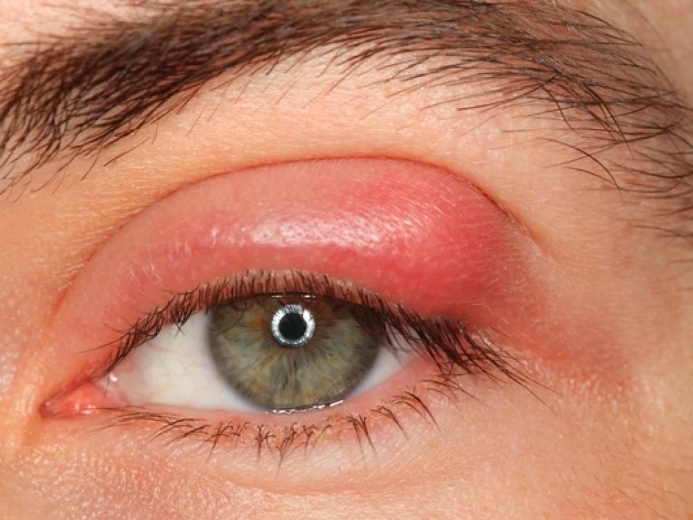 Почему появляется ячмень на глазу: причины возникновения и лечение