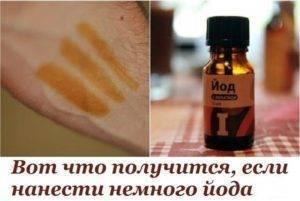 лечение псориаза йодом