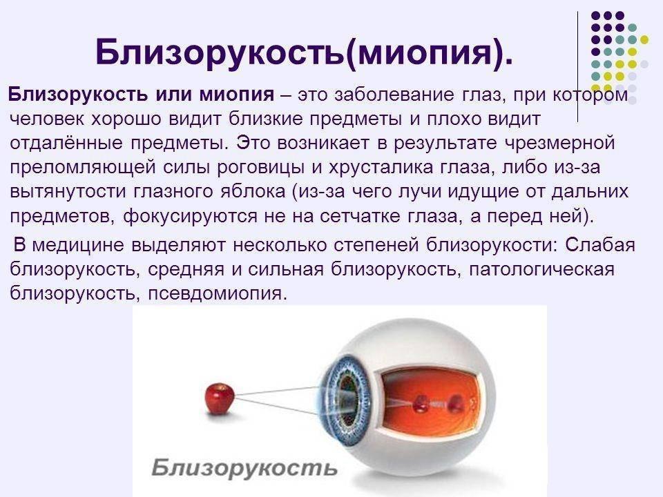 Миопия (близорукость) высокой степени — опасная патология: как ее лечить