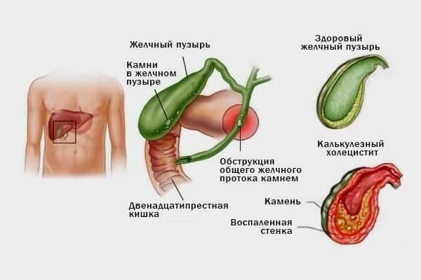 симптомы больного желчного пузыря