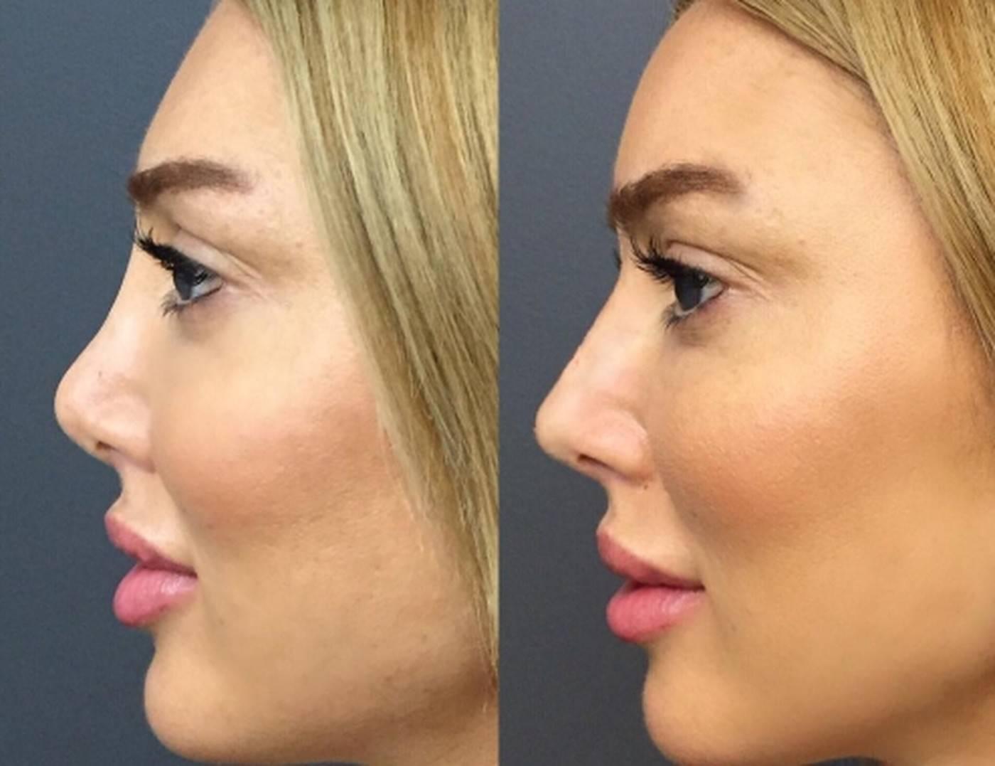как исправить форму носа без операции